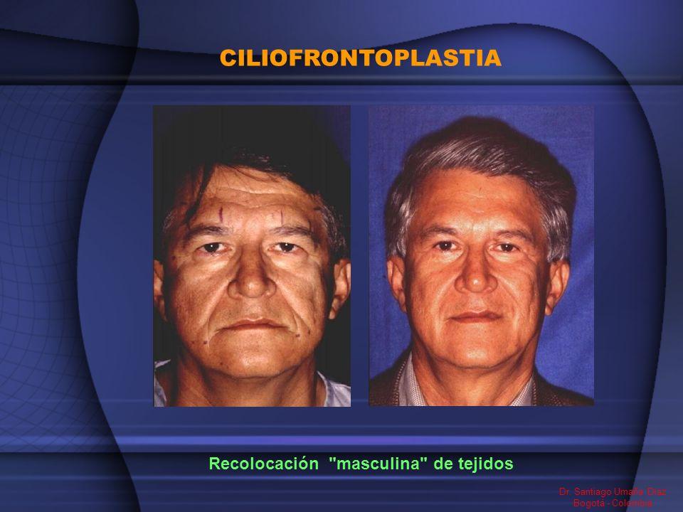 CILIOFRONTOPLASTIA Recolocación masculina de tejidos