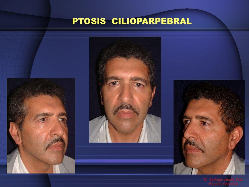 PTOSIS CILIOPARPEBRAL