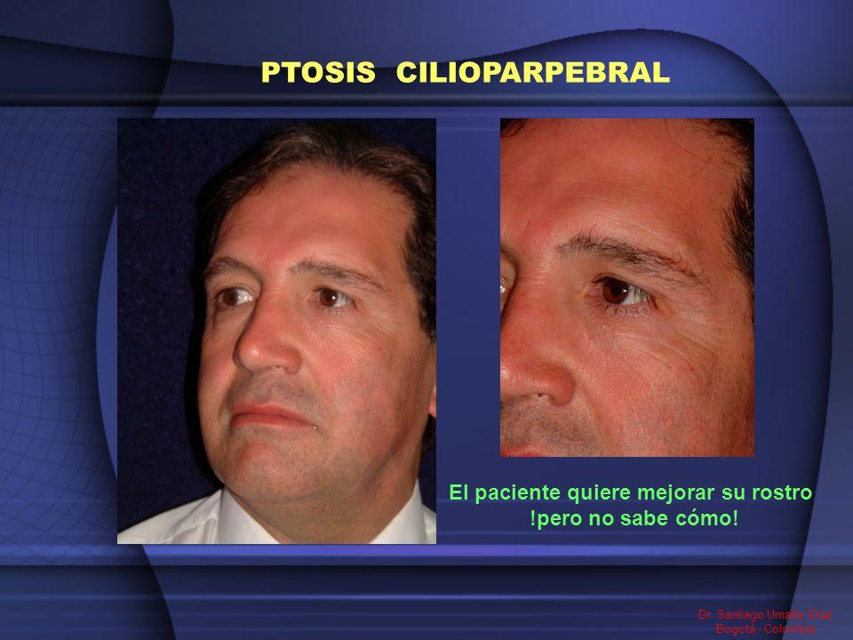 El paciente quiere mejorar su rostro