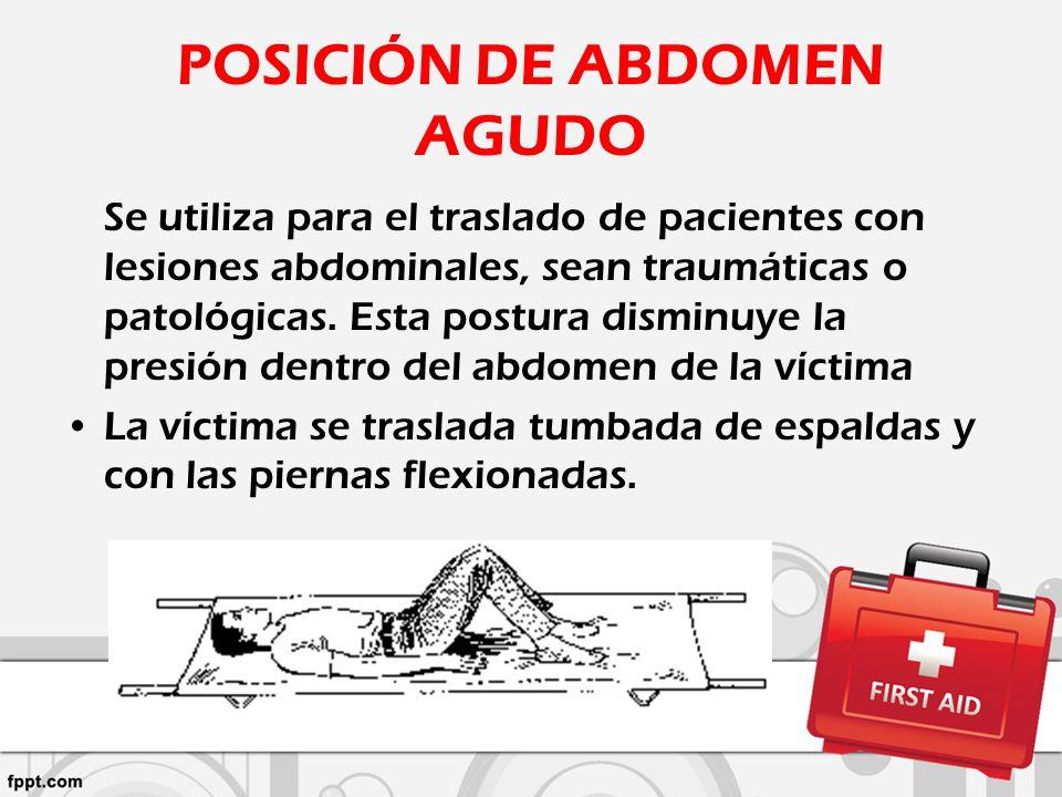 POSICIÓN DE ABDOMEN AGUDO