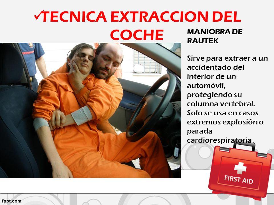 TECNICA EXTRACCION DEL COCHE