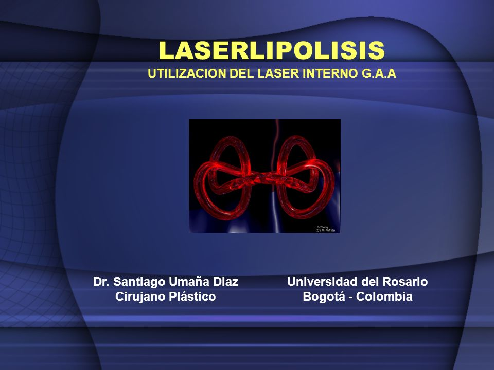 UTILIZACION DEL LASER INTERNO G.A.A Universidad del Rosario