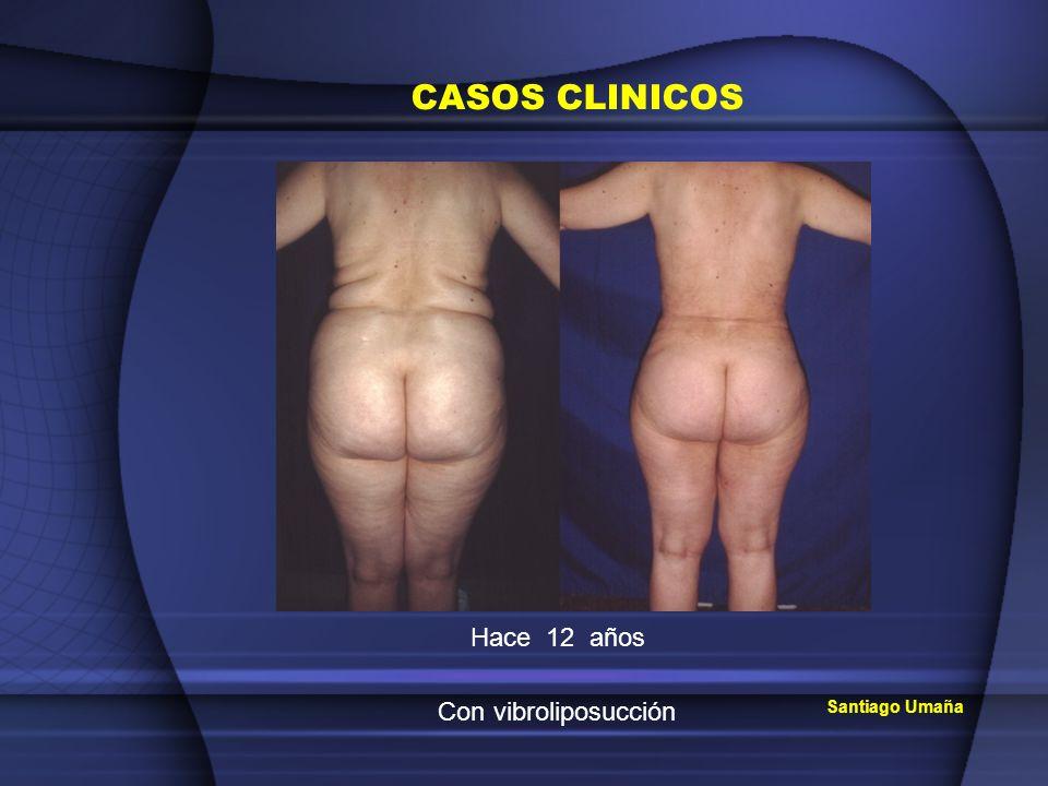 CASOS CLINICOS Hace 12 años Con vibroliposucción Santiago Umaña