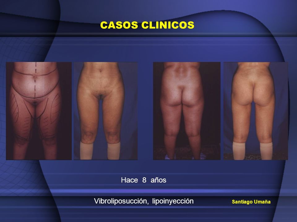 Vibroliposucción, lipoinyección