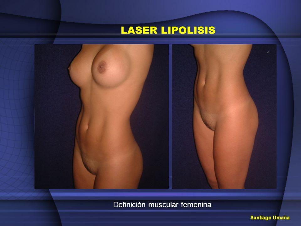 Definición muscular femenina