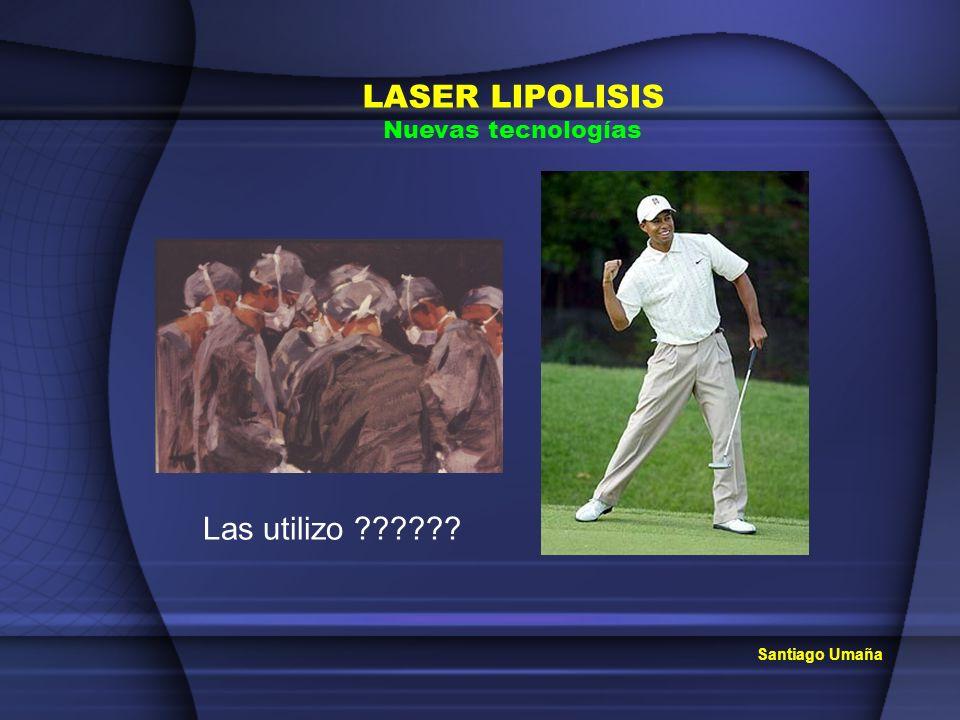 LASER LIPOLISIS Nuevas tecnologías Las utilizo Santiago Umaña