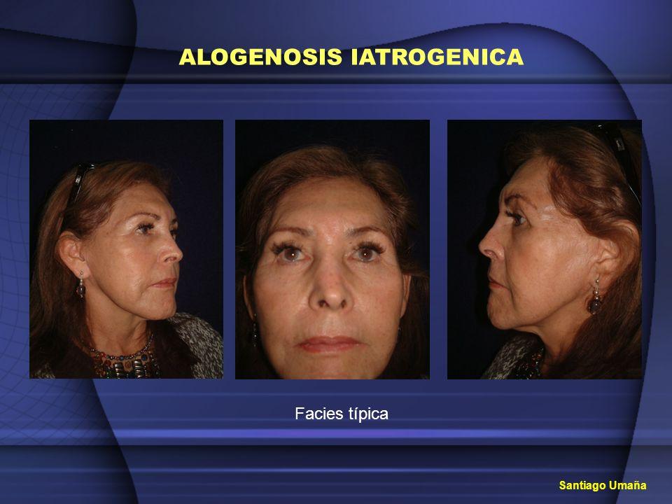 ALOGENOSIS IATROGENICA