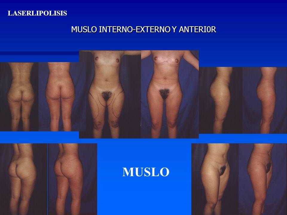 MUSLO INTERNO-EXTERNO Y ANTERI0R