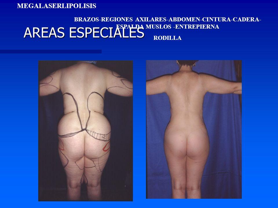 AREAS ESPECIALES MEGALASERLIPOLISIS