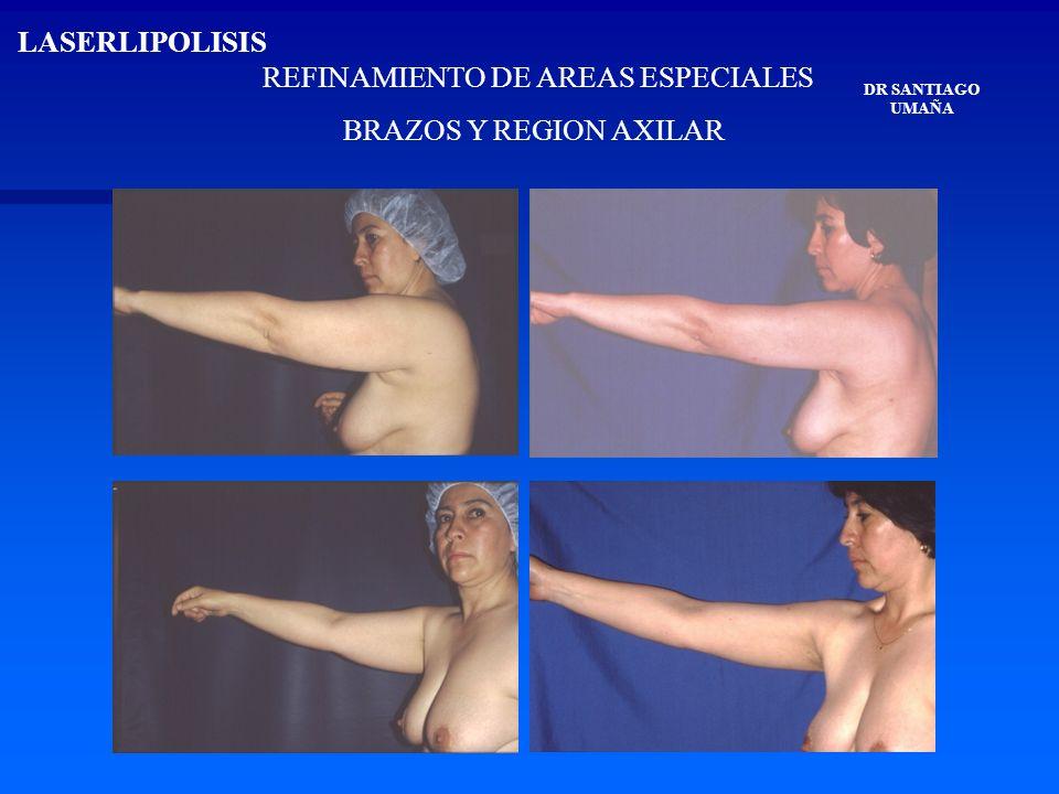 REFINAMIENTO DE AREAS ESPECIALES