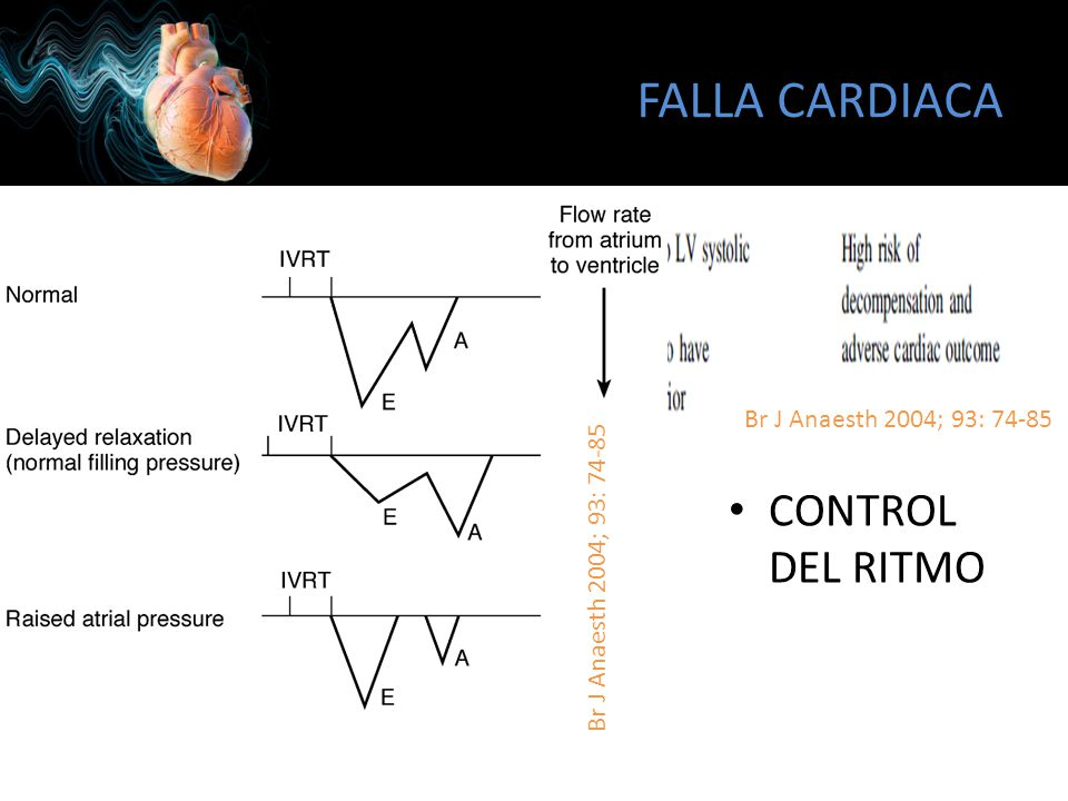 FALLA CARDIACA CONTROL DEL RITMO Br J Anaesth 2004; 93: 74-85