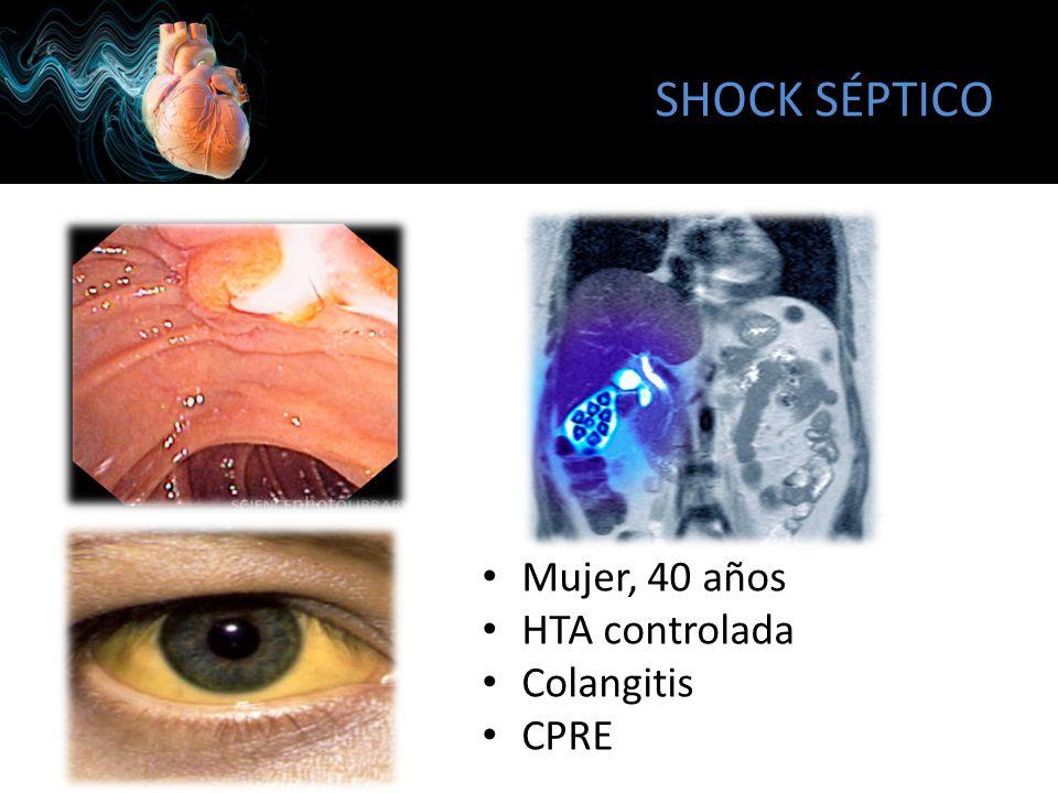SHOCK SÉPTICO Mujer, 40 años HTA controlada Colangitis CPRE
