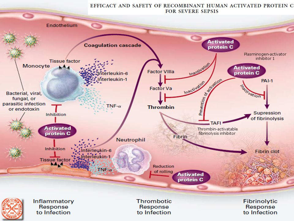 Proteína C Activada Recombinante Humana (PCArh)