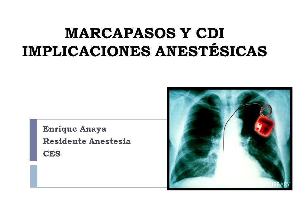 MARCAPASOS Y CDI IMPLICACIONES ANESTÉSICAS