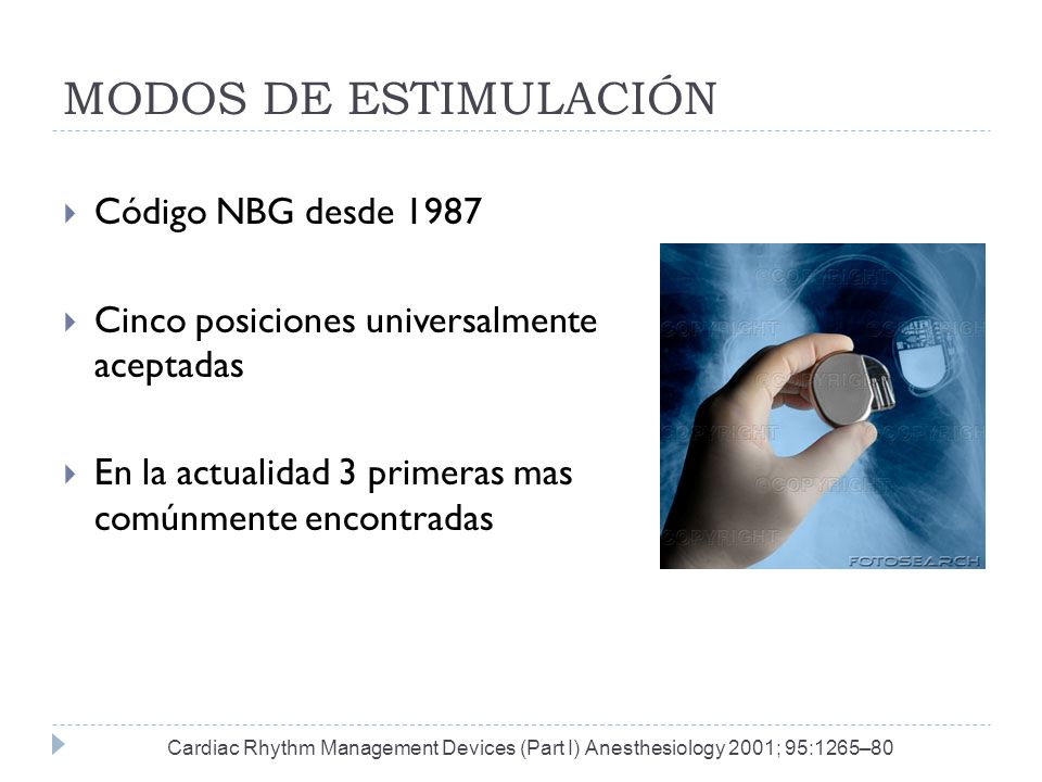MODOS DE ESTIMULACIÓN Código NBG desde 1987