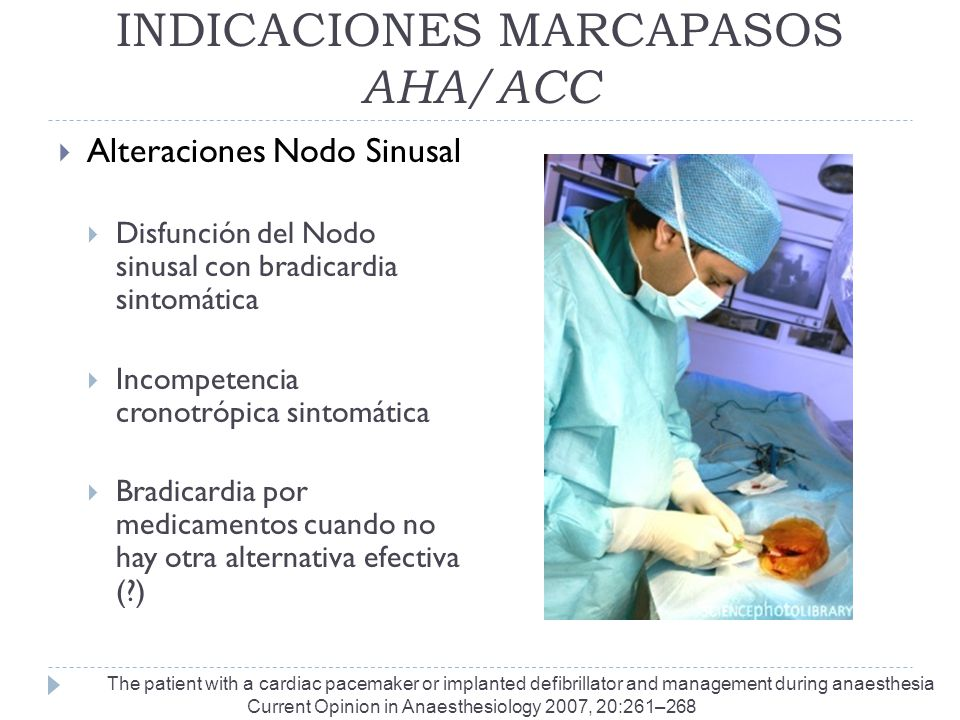 INDICACIONES MARCAPASOS AHA/ACC