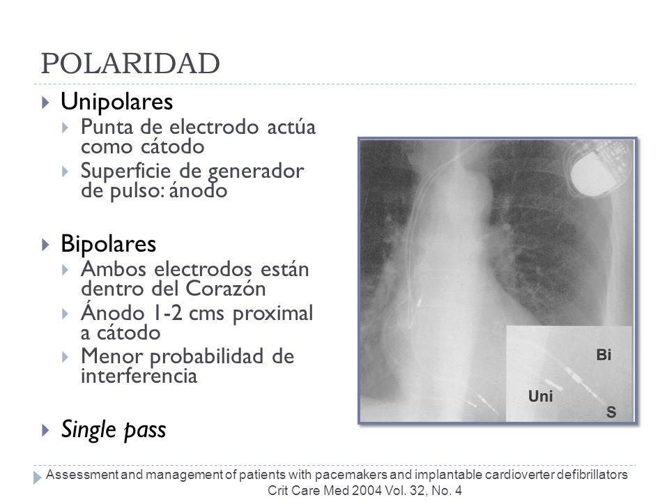 POLARIDAD Unipolares Bipolares Single pass