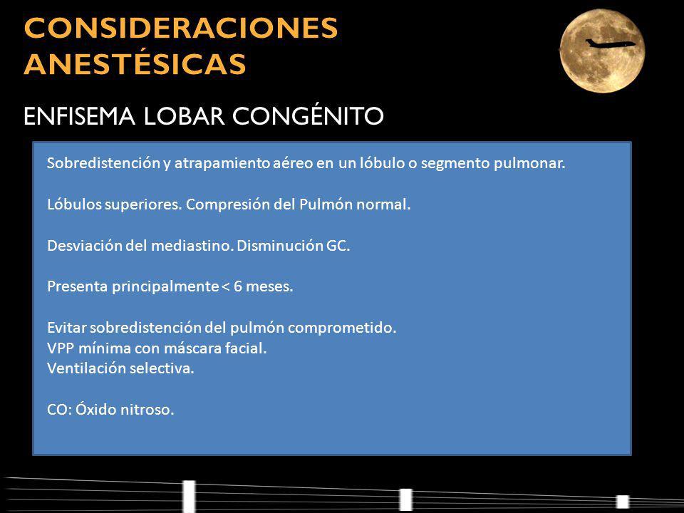 CONSIDERACIONES ANESTÉSICAS