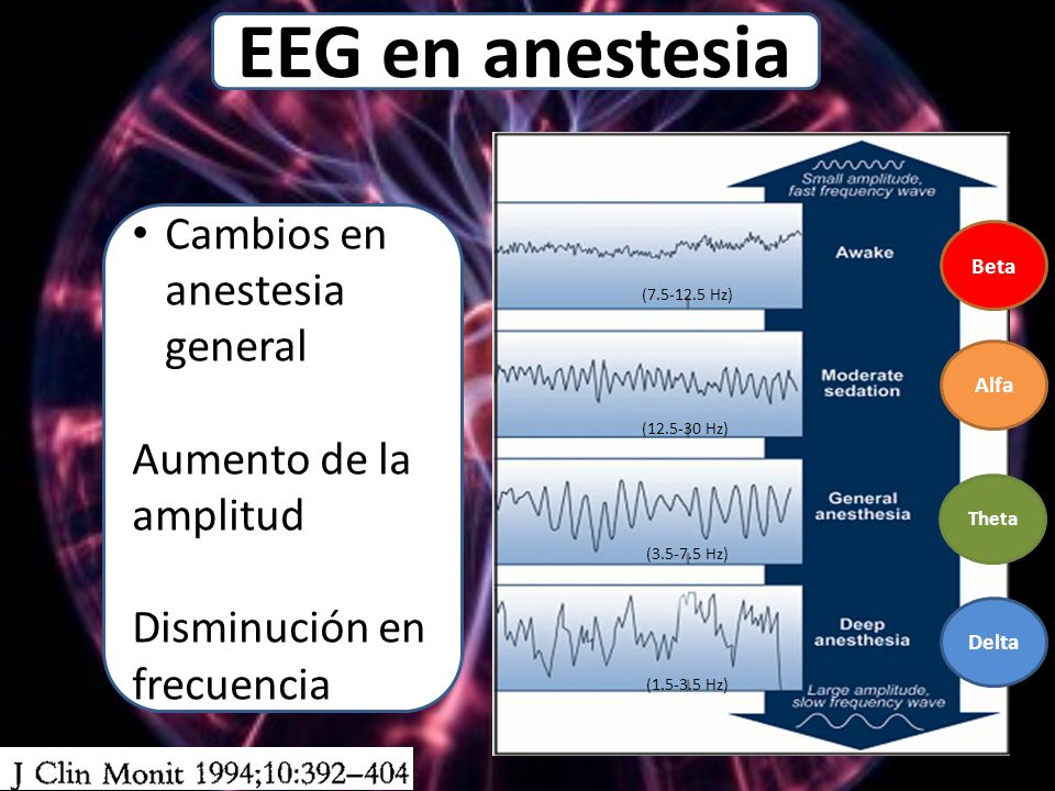 EEG en anestesia Cambios en anestesia general Aumento de la amplitud