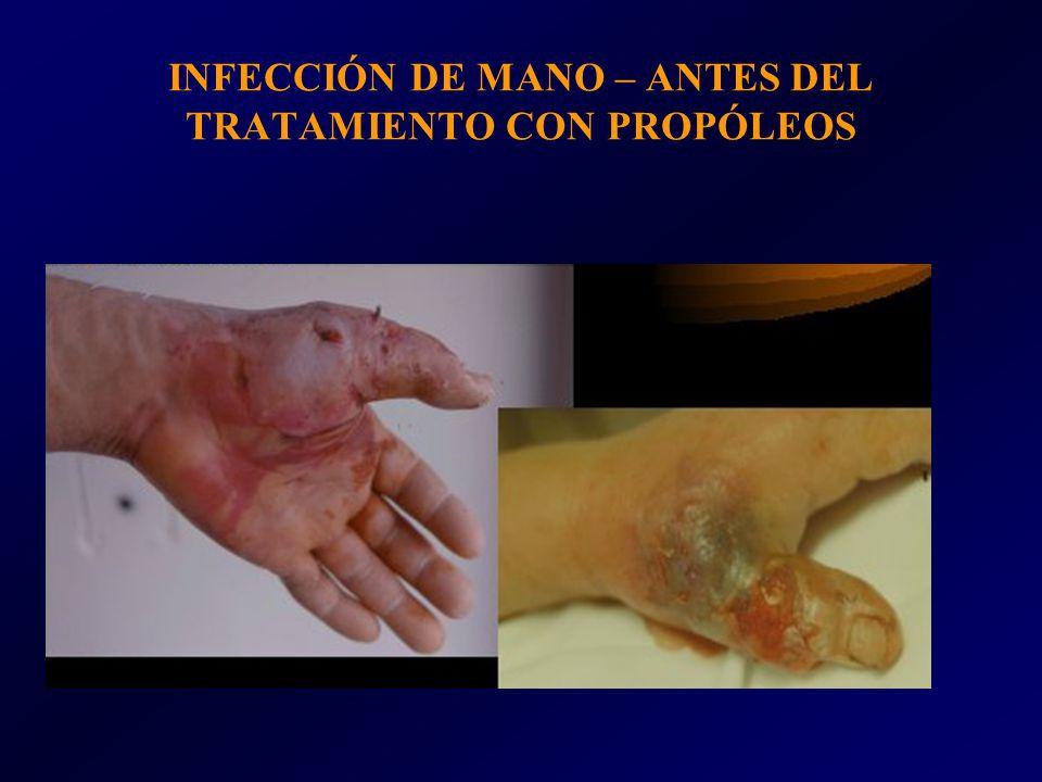 INFECCIÓN DE MANO – ANTES DEL TRATAMIENTO CON PROPÓLEOS