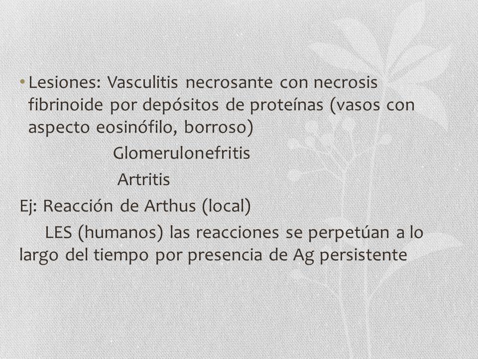 Lesiones: Vasculitis necrosante con necrosis fibrinoide por depósitos de proteínas (vasos con aspecto eosinófilo, borroso)