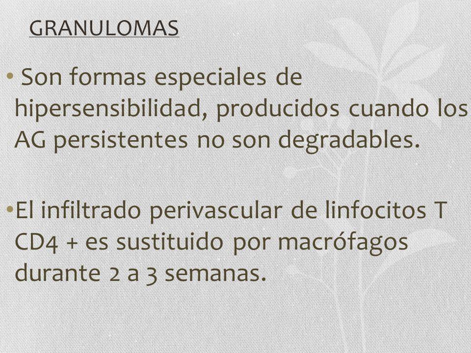 GRANULOMAS Son formas especiales de hipersensibilidad, producidos cuando los AG persistentes no son degradables.