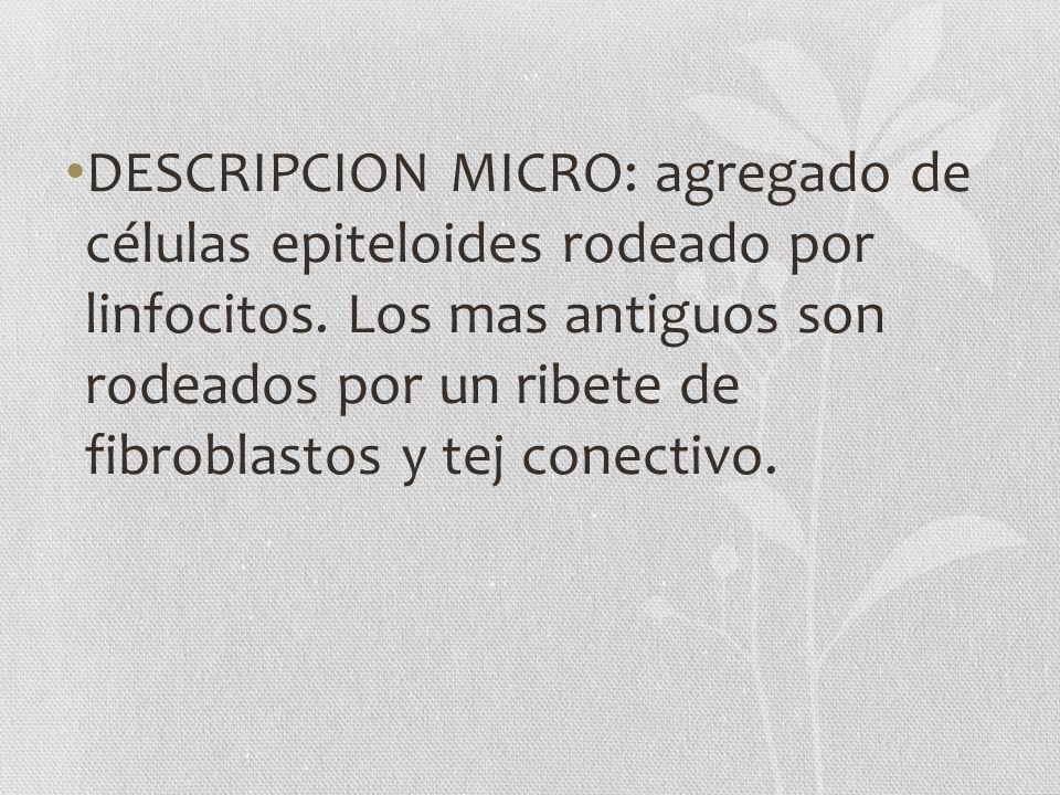 DESCRIPCION MICRO: agregado de células epiteloides rodeado por linfocitos.