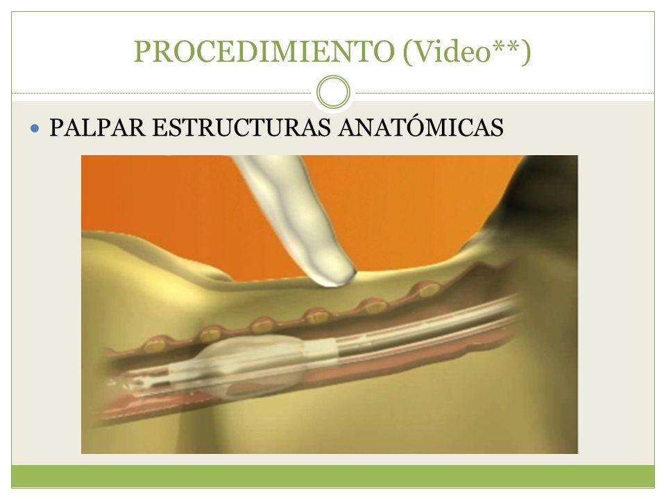 PROCEDIMIENTO (Video**)