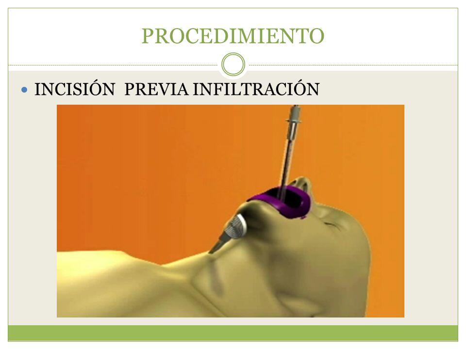 PROCEDIMIENTO INCISIÓN PREVIA INFILTRACIÓN