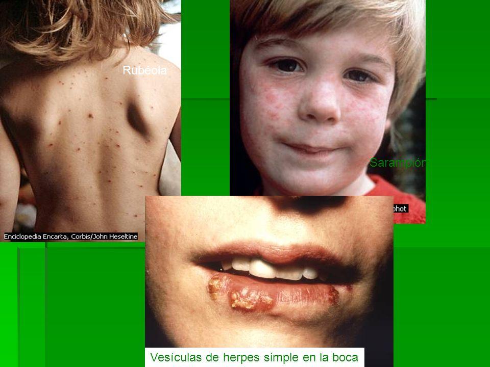 Vesículas de herpes simple en la boca