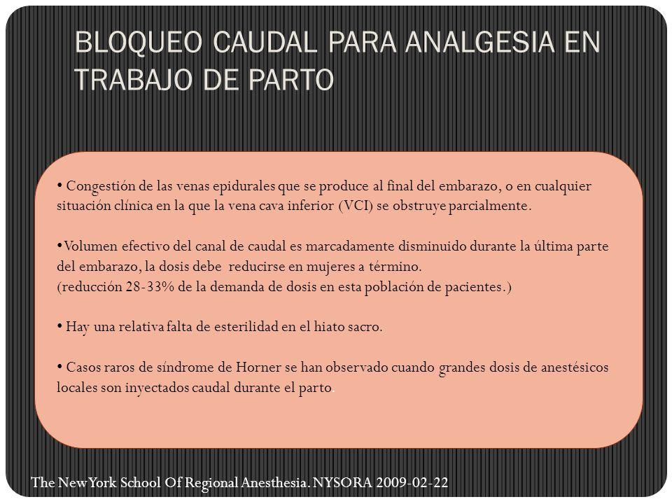 BLOQUEO CAUDAL PARA ANALGESIA EN TRABAJO DE PARTO