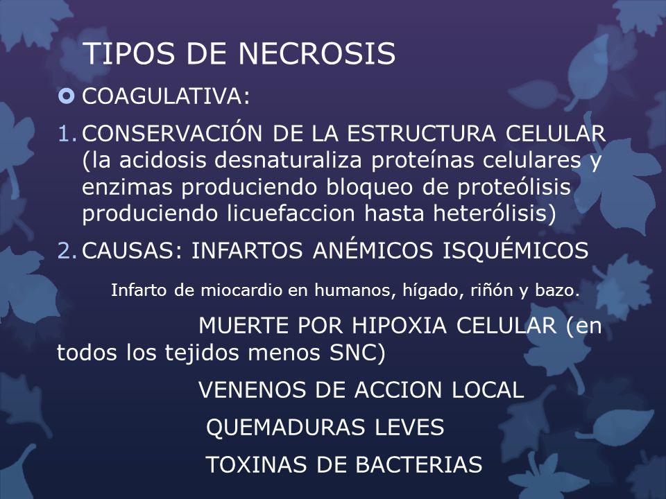 TIPOS DE NECROSIS COAGULATIVA:
