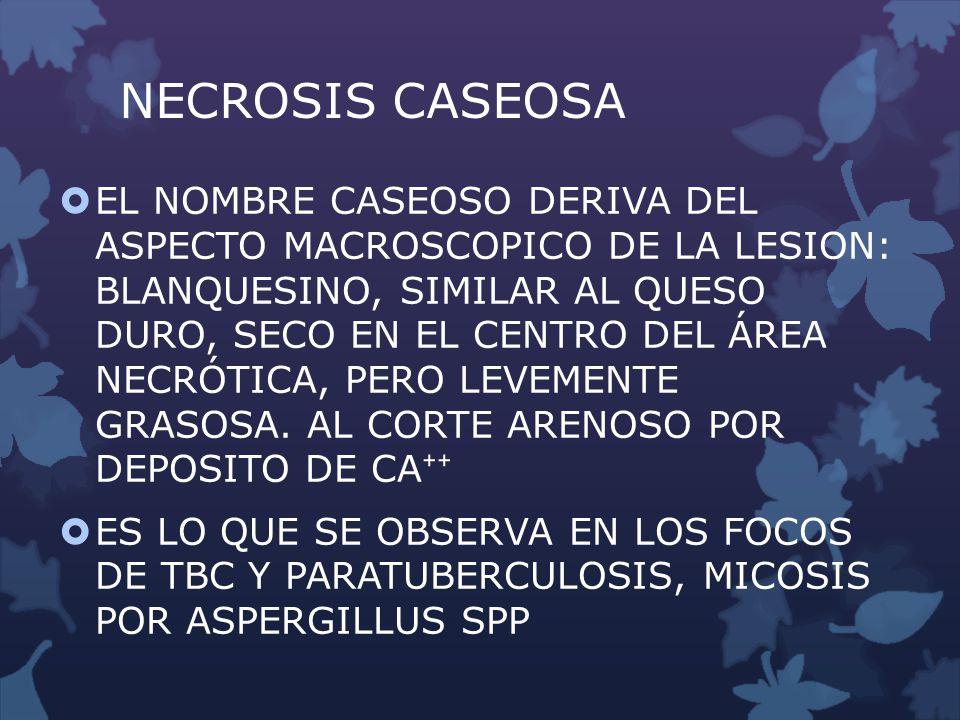NECROSIS CASEOSA