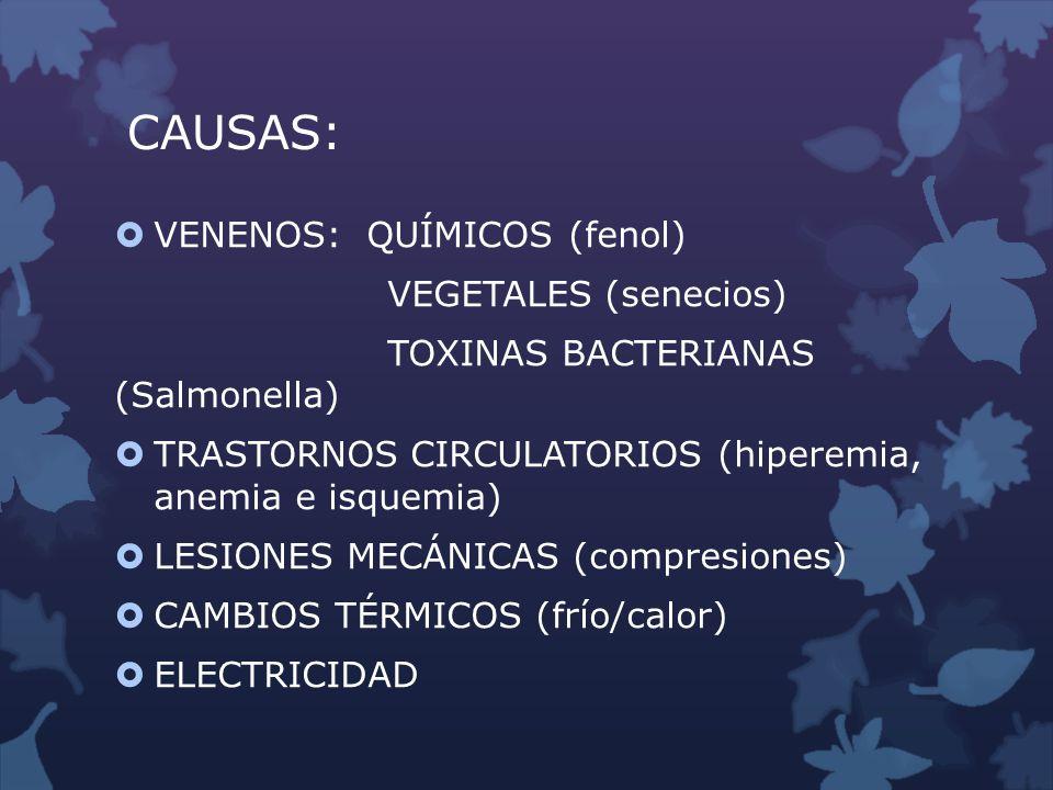 CAUSAS: VENENOS: QUÍMICOS (fenol) VEGETALES (senecios)