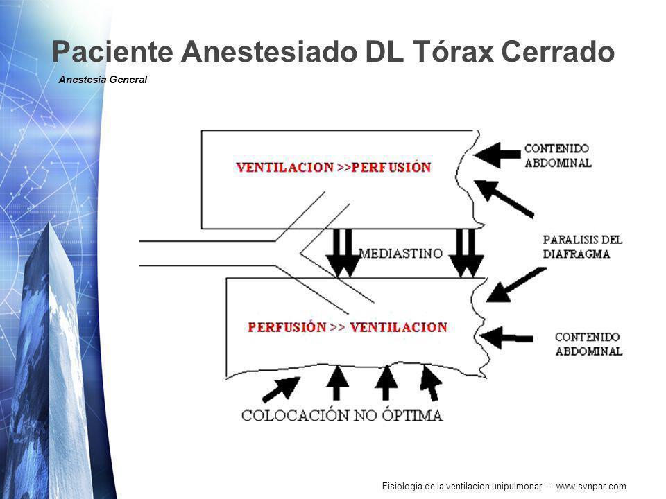 Paciente Anestesiado DL Tórax Cerrado