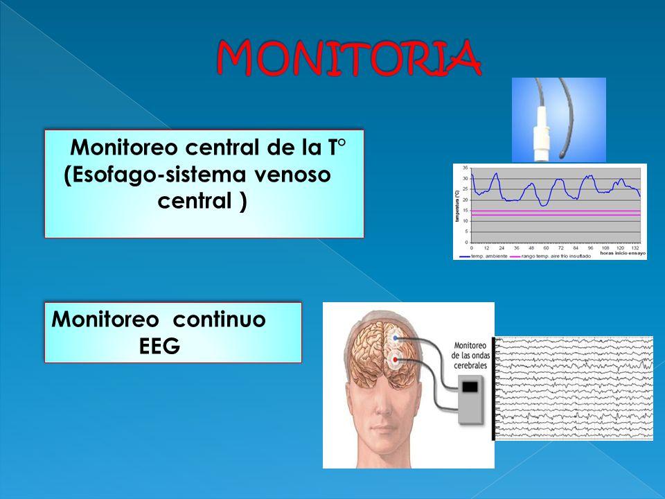 MONITORIA Monitoreo central de la T° (Esofago-sistema venoso central )