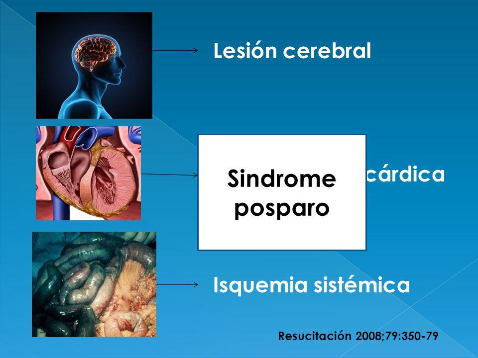 Sindrome posparo Lesión cerebral Disfunción miocárdica