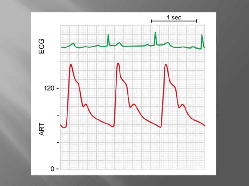 La PAS central es menor, conforme avanza el arbol arterial, el pulso aumenta y la PAS tbn, la PAM se mentiene igual, y esta debe ser la guia para ccambios en el manejo.