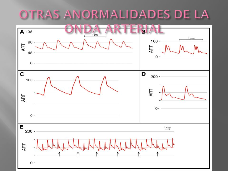 OTRAS ANORMALIDADES DE LA ONDA ARTERIAL