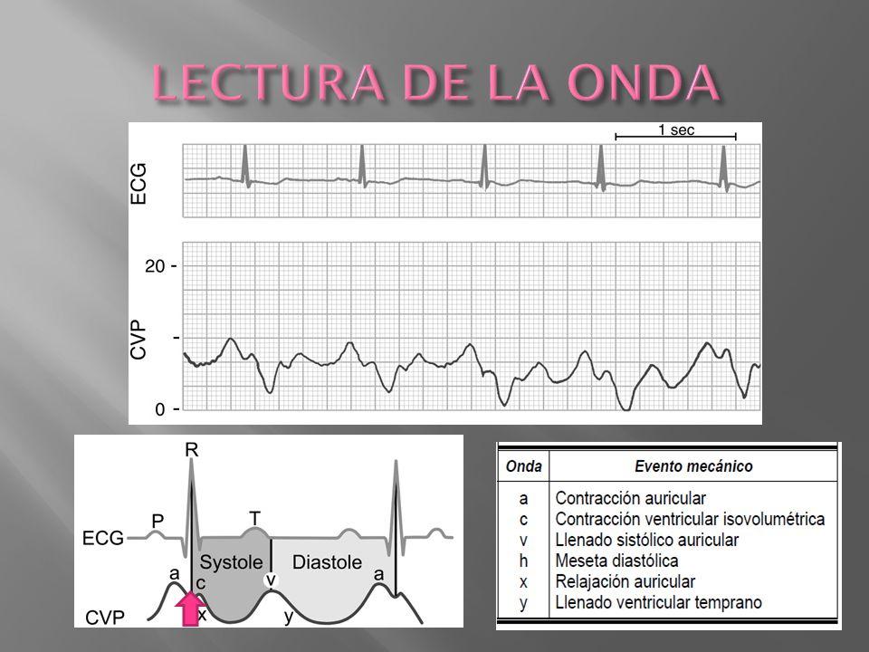 LECTURA DE LA ONDA C: cierre de la valvula tricuspidea y mvto hacia la auricula. X: posteriormente la P en auric cae.