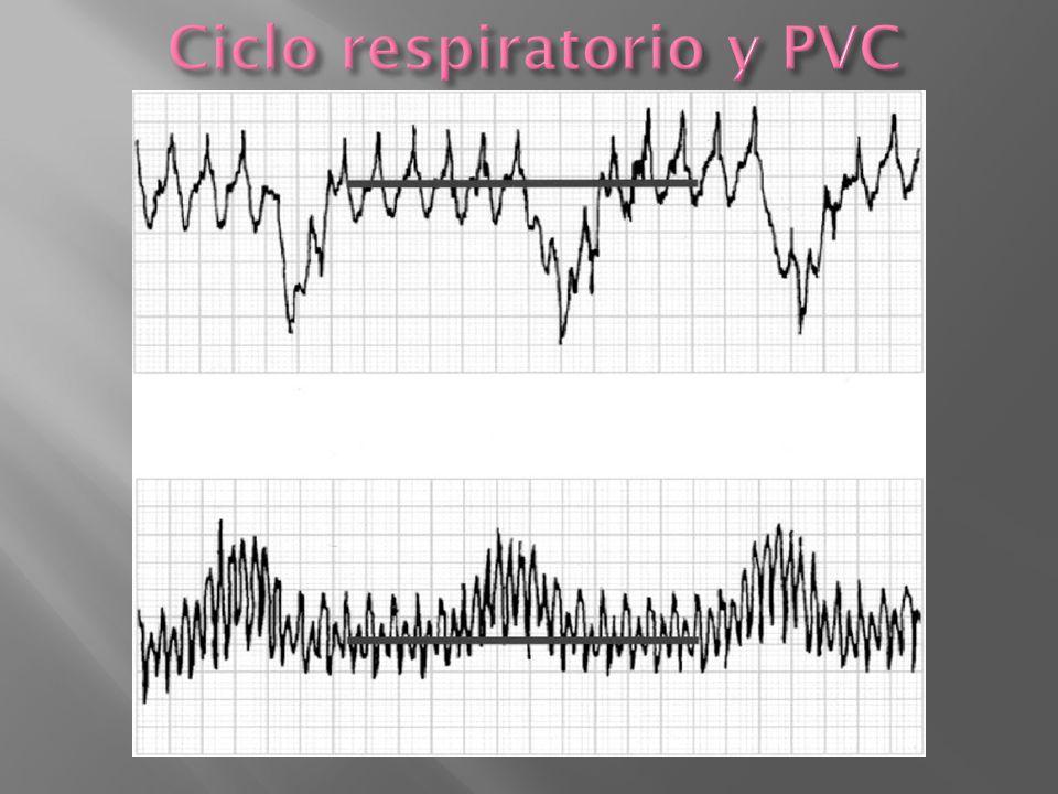 Ciclo respiratorio y PVC