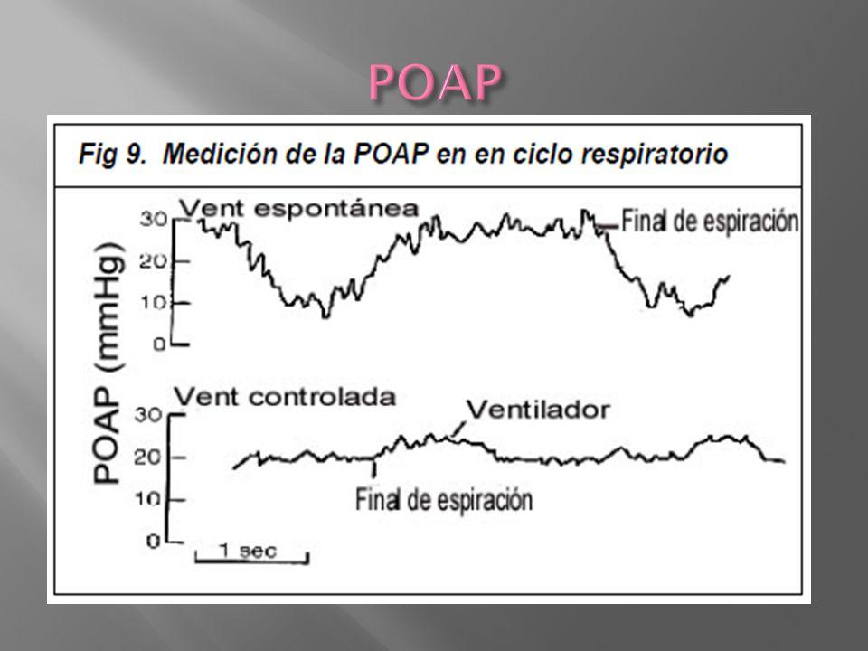 POAP Presión de oclusión de la arteria pulmonar (POAP): Se obtiene inflando el balón para interrumpir el flujo sanguineo a través.