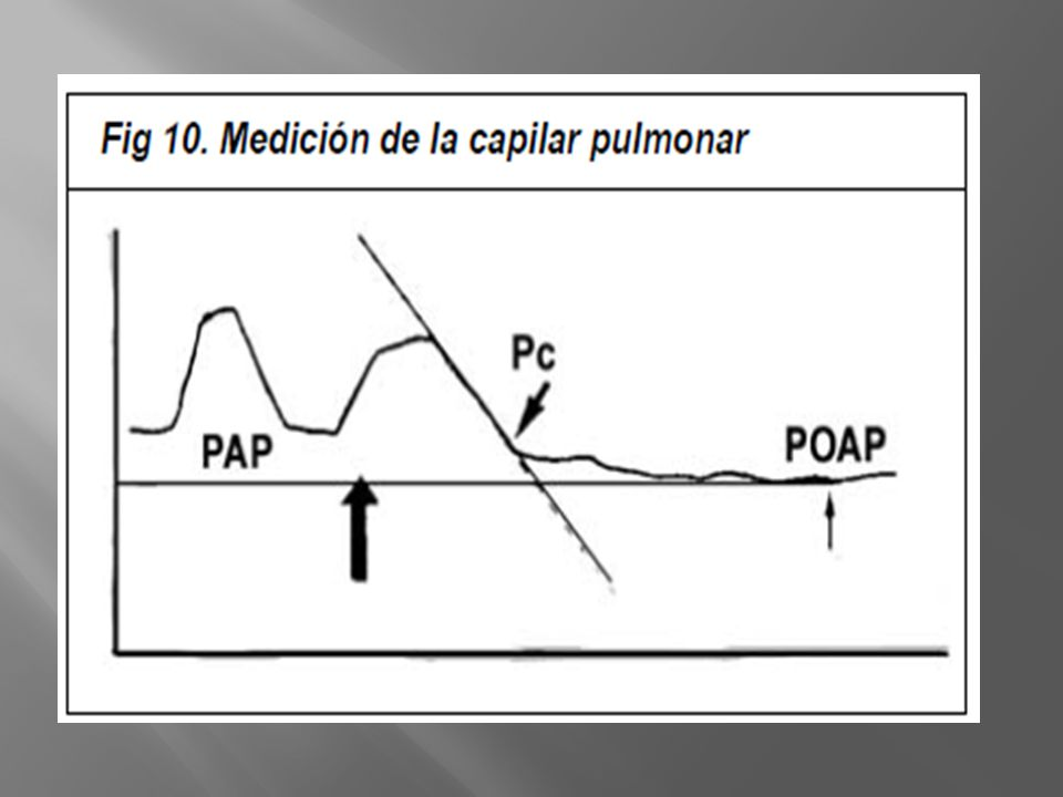 La POAP no es el único factor a tener en cuenta para la prevención del edema pulmonar. Se deben considerar además de la presión hidrostática, la permeabilidad de las membranas y la presión coloido-osmótica.