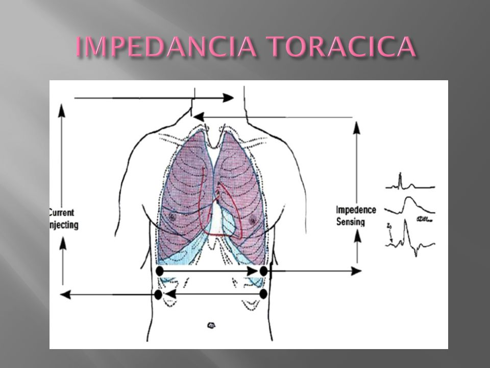 IMPEDANCIA TORACICA