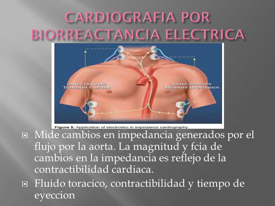 CARDIOGRAFIA POR BIORREACTANCIA ELECTRICA