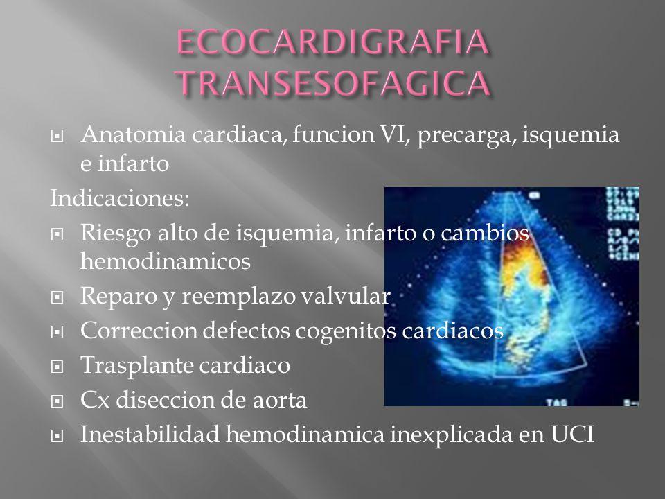 ECOCARDIGRAFIA TRANSESOFAGICA