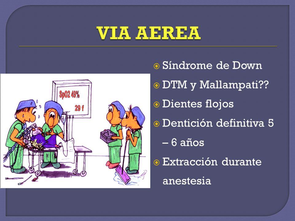 VIA AEREA Síndrome de Down DTM y Mallampati Dientes flojos