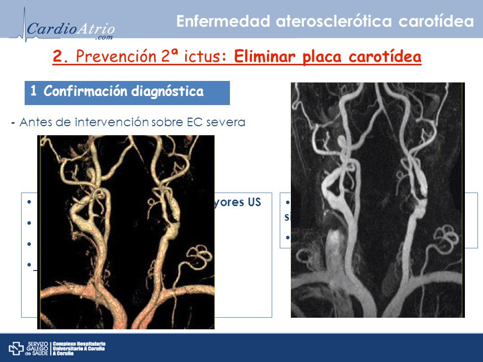 Angio-RNM Angio-TAC Enfermedad aterosclerótica carotídea