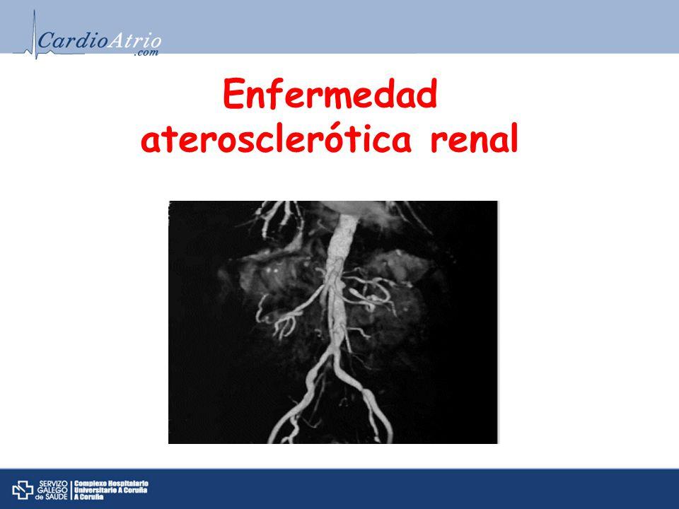 aterosclerótica renal
