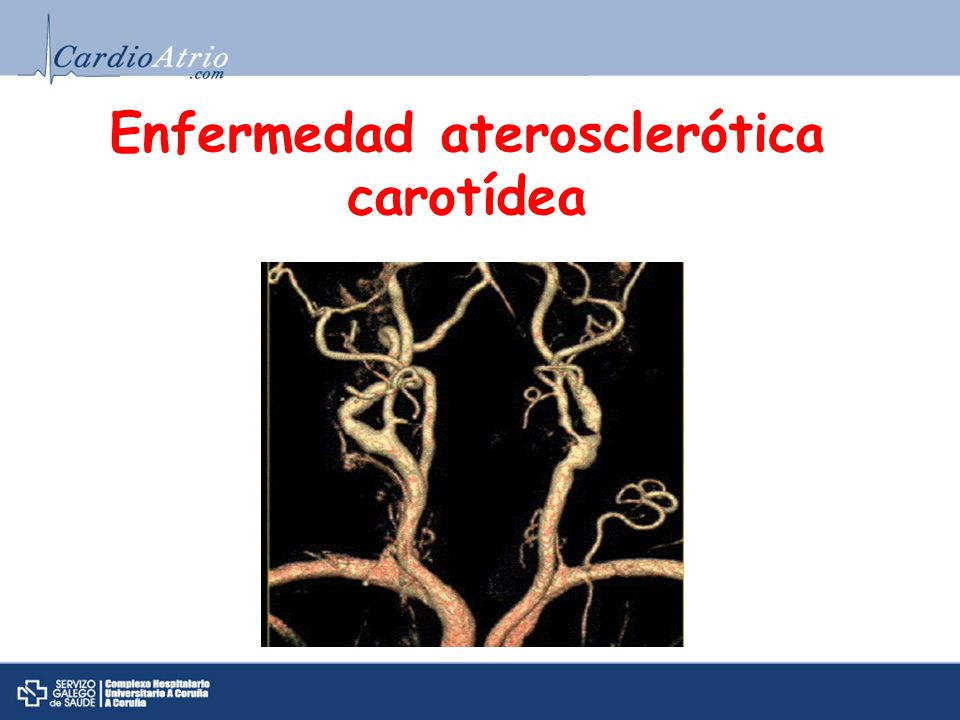 Enfermedad aterosclerótica carotídea